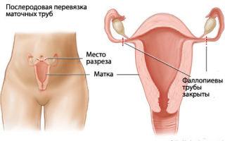 Сделать перевязку труб женщине